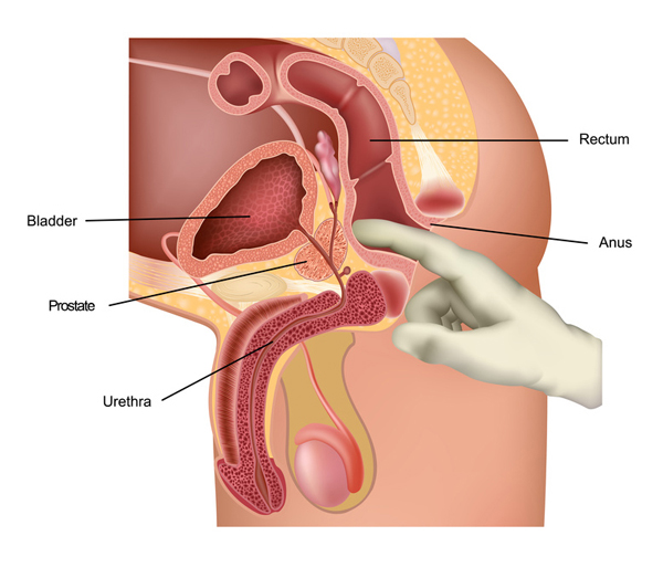 Prostate Diagram